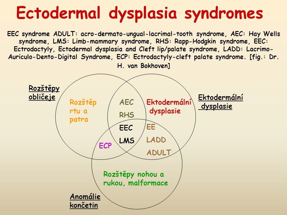 Ectodermal dysplasia syndromes EEC syndrome ADULT: acro-dermato-ungual-lacrimal-tooth syndrome, AEC: Hay Wells syndrome, LMS: Limb-mammary syndrome, RHS: Rapp-Hodgkin syndrome, EEC: Ectrodactyly, Ectodermal dysplasia and Cleft lip/palate syndrome, LADD: Lacrimo-Auriculo-Dento-Digital Syndrome, ECP: Ectrodactyly-cleft palate syndrome. [fig.: Dr. H. van Bokhoven]